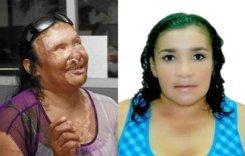 Mauricio Noguera acido mujeres victima